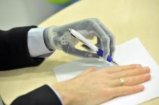 Touch bionics i limb